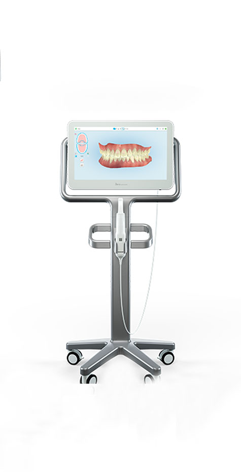 An ITERO 2 intraoral scanner