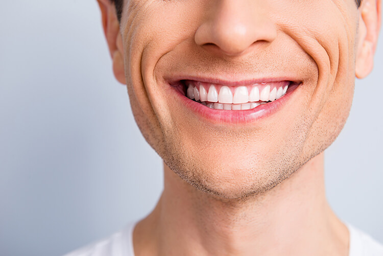 Close up of a perfect smile due to dental implants