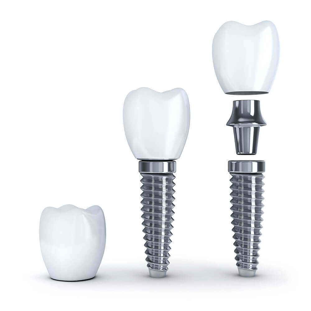 The three different parts of a dental implant